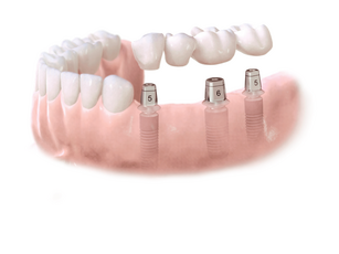 implantat bro