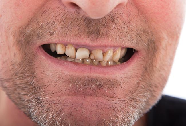 gnissla tänder barn 1 år