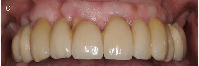 Bro av tänder patientexempel