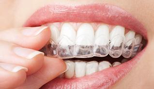 Bleka tänder tandblekning med blekskena