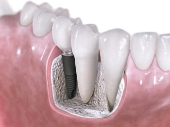 Implantat i genomskärning i käke