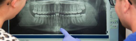 Genombrott för digital teknik i tandläkarens vardag
