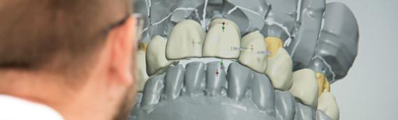 Tandteknikern skriver om TVG Dentalteknik