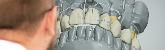 Johan i arbete med tandframställning via digitala filer