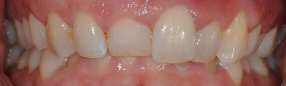 Estetisk tandvård – en ny framtand tar form