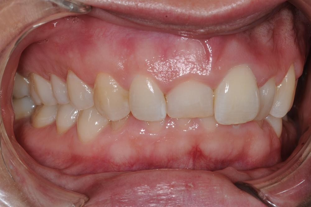 estetisk tandvård före kirurgi