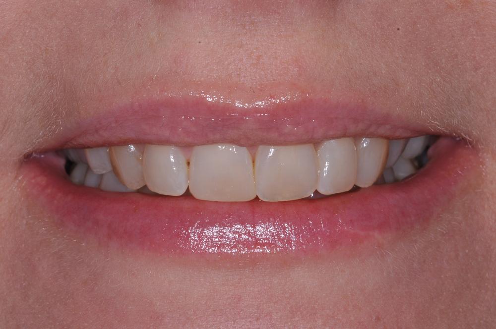 estetisk tandvård efter kirurgi